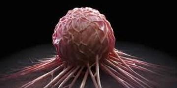 افزایش نرخ ابتلا به سرطان پوست میان مردان