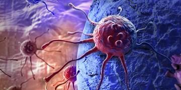 ابداع تست 100 درصد دقیق سرطان دهانه رحم