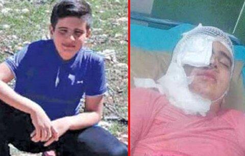 ماجرای یک اسیدپاشی مرگبار در کرمانشاه