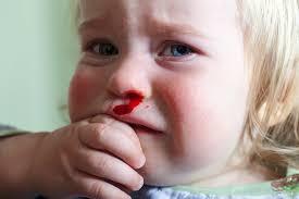 دلایل خون دماغ شدن کودکان